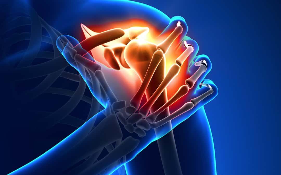 Informareonline-calcificazione-alla-spalla
