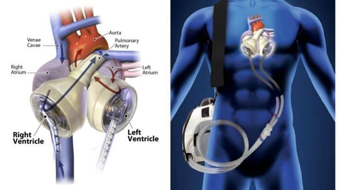 informareonline-cuore-artificiale-ricevuto-da-due-pazienti-in-italia